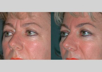 Correction of frown lines and lifting of the lateral eyebrows with botulinum