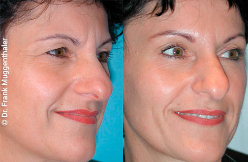 Correction of wrinkles with botulinum