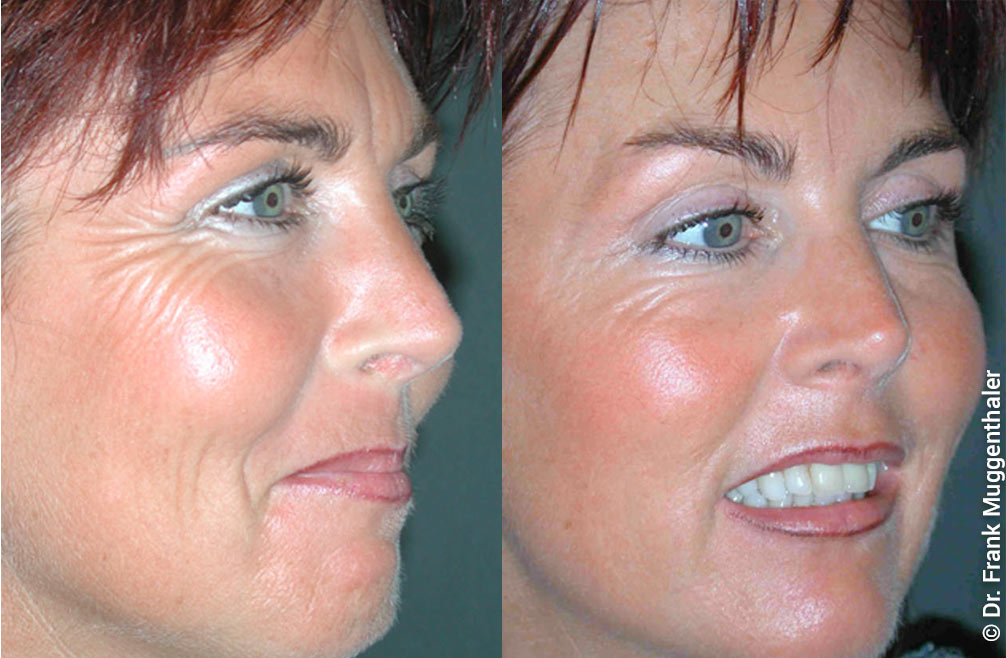 Wrinkle treatment with Botulinum toxin in Basel