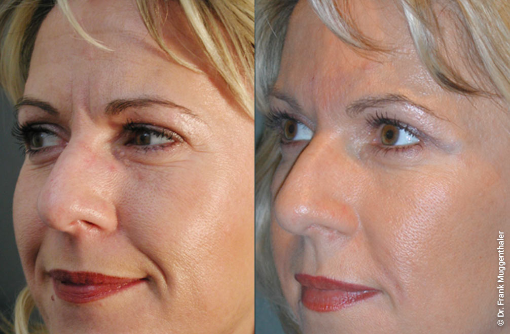 Smoothing the frown lines with a RESTYLANE relining.