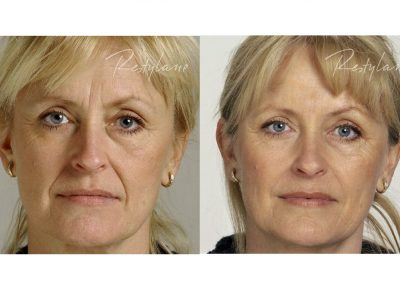 Correction of a pronounced nasolabial fold with hyaluronic acid