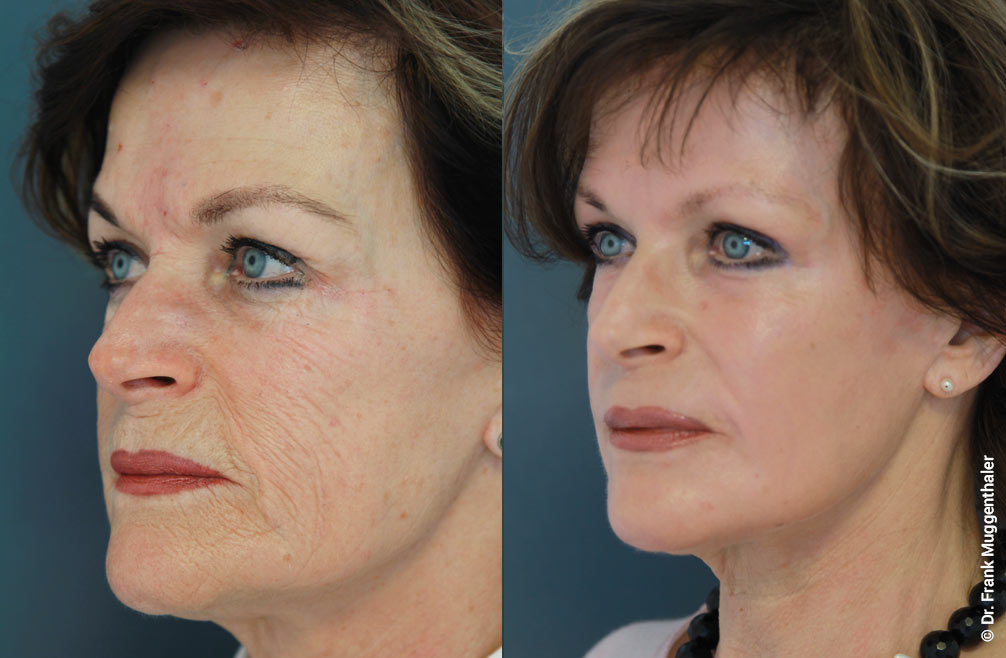 By the phenol deep peeling according to Dr. med. Muggenthalerr, deep wrinkles on the cheeks were also completely smoothed. The entire facial skin becomes more elastic and fresher.