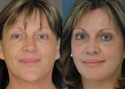 "Six months after the phenol deep peelling according to Dr. Muggenthaler, almost all disturbing wrinkles are completely smoothed. The face looks harmoniously ""naturally"" lifted."