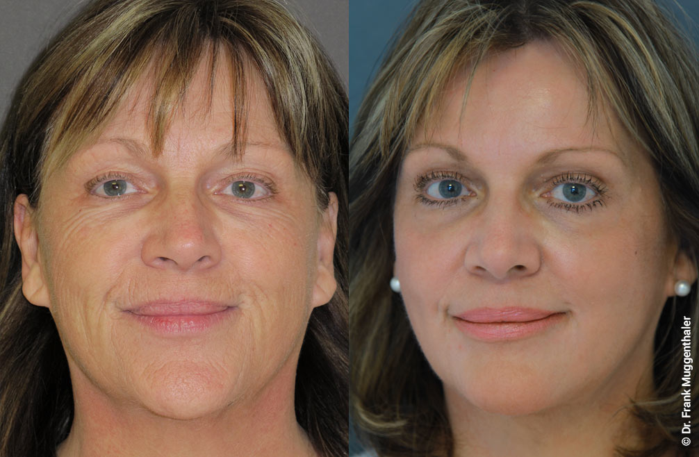 """Six months after the phenol deep peelling according to Dr. Muggenthaler, almost all disturbing wrinkles are completely smoothed. The face looks harmoniously """"naturally"""" lifted."""