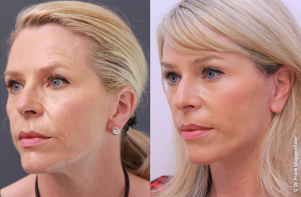Six weeks after a face lift and a deep phenol peeling of the mouth area and the lower eyelids.