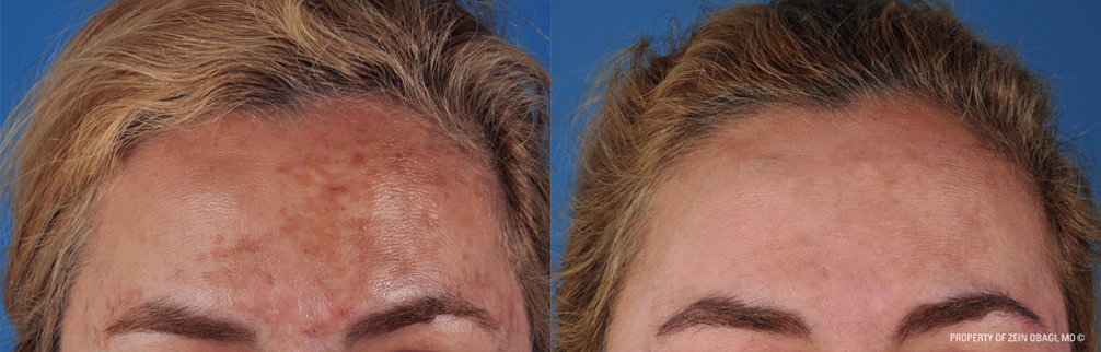 Correction of pigment disorders