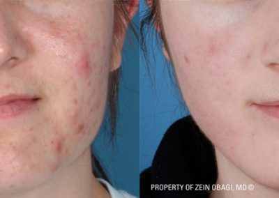 Treatment of facial acne