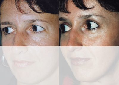 Thanks to the combined raising of the eyebrows, the incisions on the upper eyelids can be reduced to a minimum.