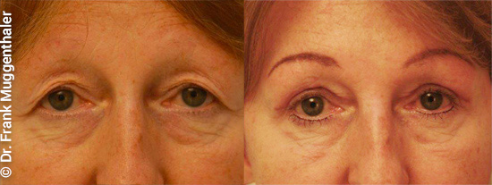 The combination of upper eyelid correction with a brow lift has also enabled a particularly harmonious result here.