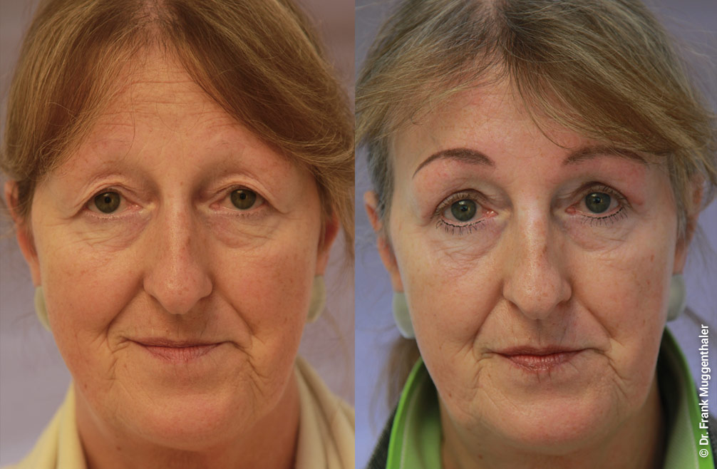The combination of eyebrow lifting with upper eyelid correction has also enabled a particularly harmonious result here.