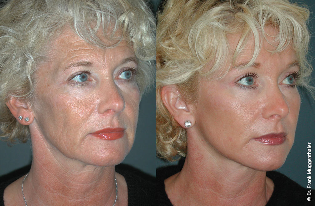Before and after a lifting of the forehead, cheeks and neck. The comprehensive and even correction allows a particularly harmonious result.