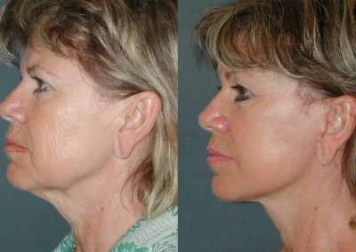 Face and neck lifting straightens the lower jaw line and gives the neck a clear contour.
