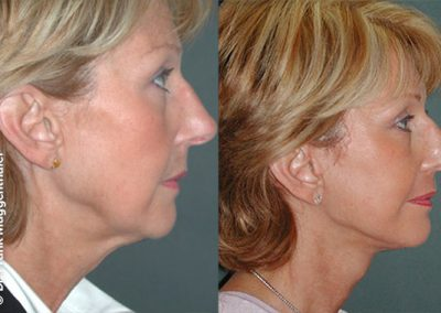 After the lifting of the cheeks and the neck, clear contours become clear again, giving the entire face a younger appearance.
