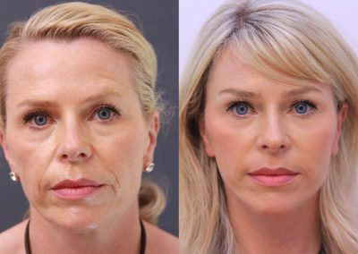 Six weeks after a face lift and a deep peeling of the mouth region and the lower eyelids.