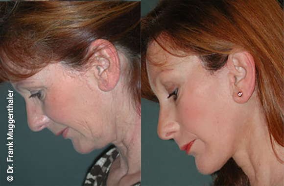 Before and after a lifting of the brows, cheeks and neck.