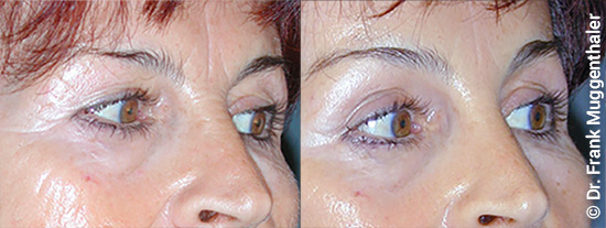 "All incisions lie above the eye in the fold and run out to the side into a ""laugh fold""."