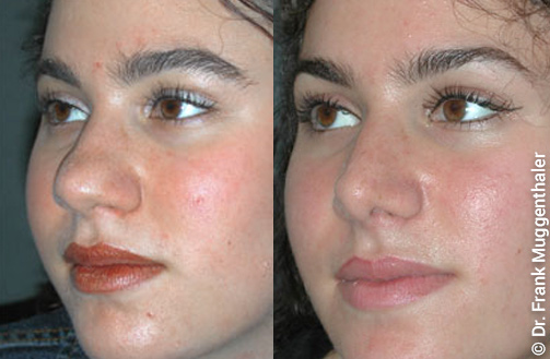 The narrowing and reduction of the tip of the nose gives the entire face a more harmonious expression.