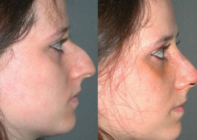 The removal of the hump and reduction of the nose makes the face appear more harmonious and feminine.