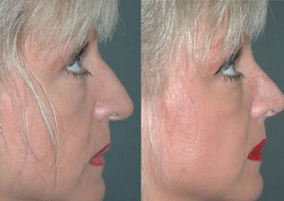 The lifting of the sunken tip and the discreet removal of the small hump optimise the proportions and improve the harmonious appearance.