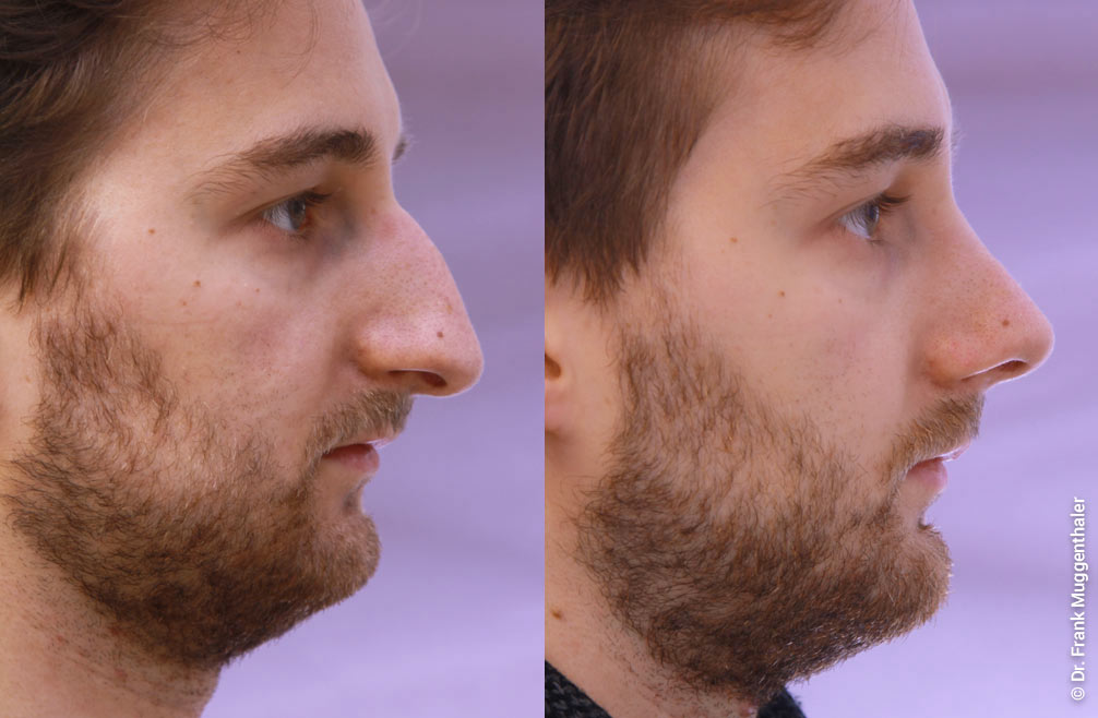 In the patient, the nose was shortened and lifted, and the bump was removed.