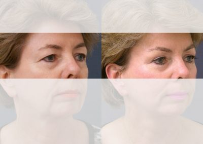 "Combination of eyebrow lift and upper eyelid correction with the aim of a balanced position of the eyebrows and ""opening"" of the eye area."