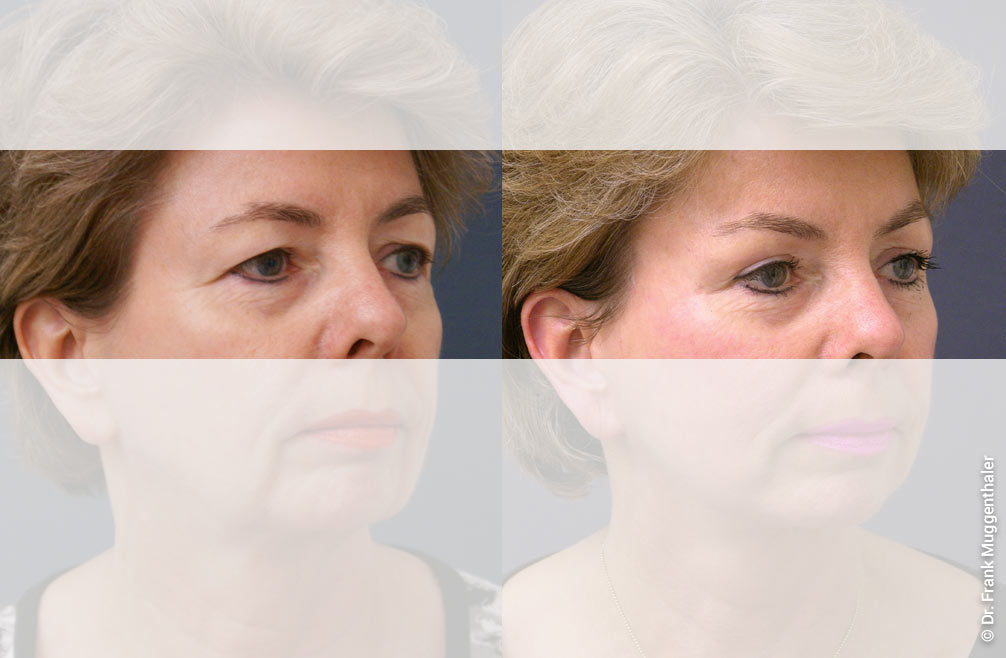 """Combination of eyebrow lift and upper eyelid correction with the aim of a balanced position of the eyebrows and """"opening"""" of the eye area."""