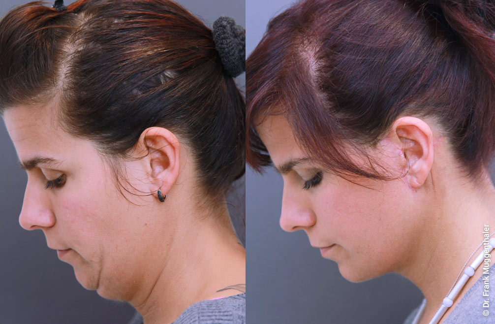In this 26 year old lady, a neck lift was used to create a distinctive contour of the neck.