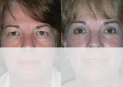 A slight lifting of the eyebrows supports the effect of an upper eyelid correction.