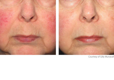Treatment of rosacea, skin rejuvenation