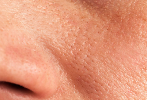Grosse Poren – Ursache, Vorbeugung und Behandlung