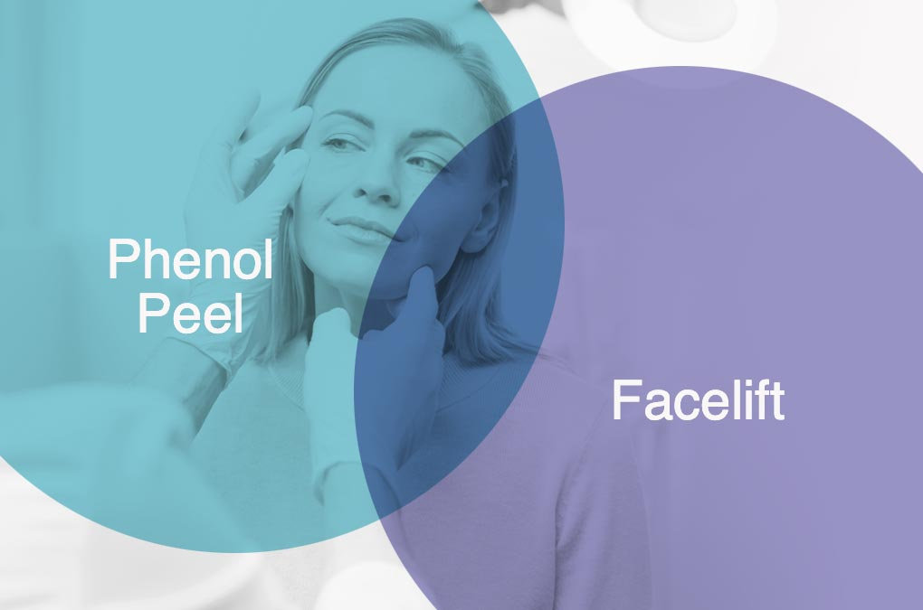 Phenol Peeling vs. Facelifting